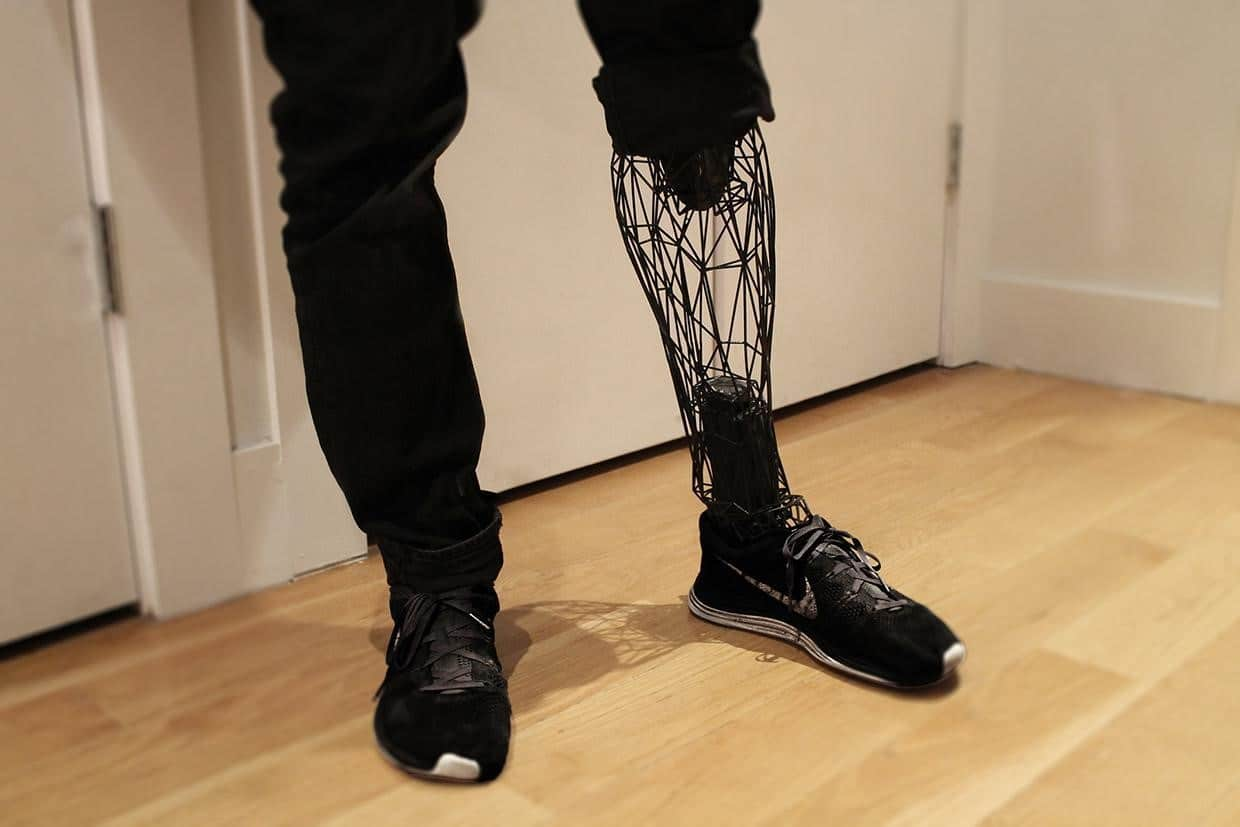 3D Printed Prosthetics Are Helping Amputees Save Money